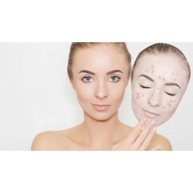 Как избавиться от черных точек на лице?
